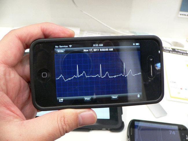 iPhone-ECG-Monitor-04.jpg
